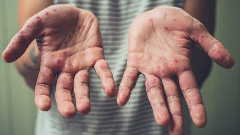 Saúde confirma 13 casos de sarampo no Paraná