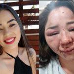 Homem que espancou ex-namorada em Tapejara ainda não se apresentou à polícia